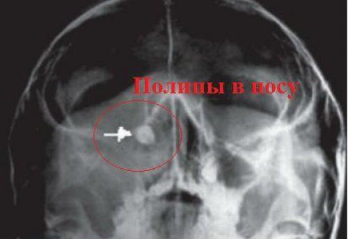 Полипы в носу при рентгене