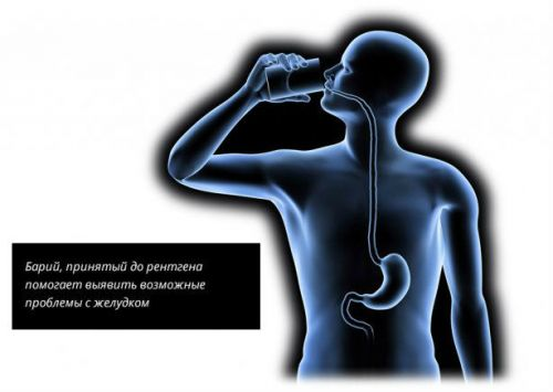 Барий для диагностики желудка