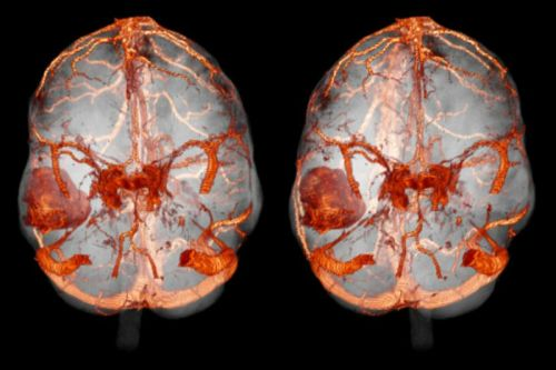 МРТ головного мозга с контрастом