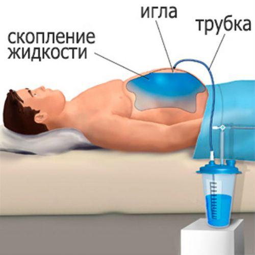 Откачивание жидкости при асците