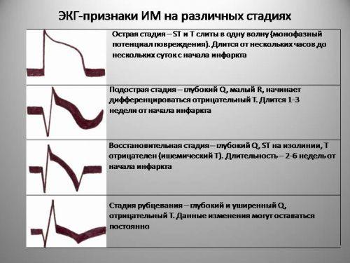 Признаки инфаркта миокарда на ЭКГ
