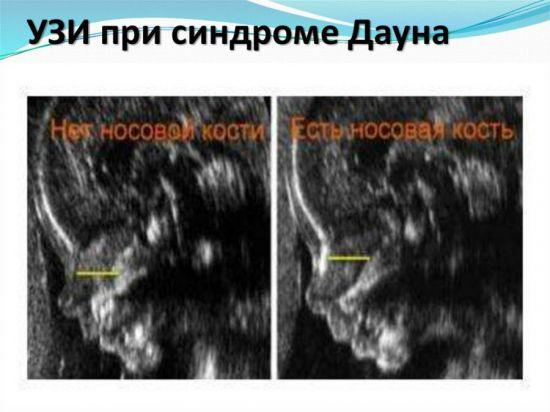 Синдром Дауна на УЗИ