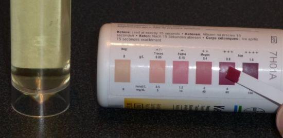 Тест-полоски на ацетон в моче