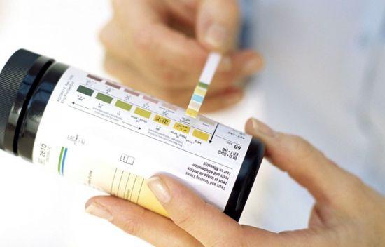 Тест-полоски для определения кетонов в моче