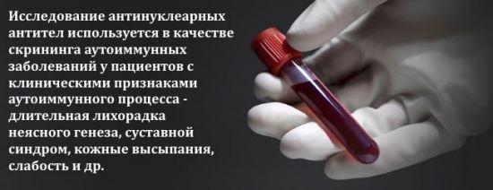 Антинуклеарные антитела