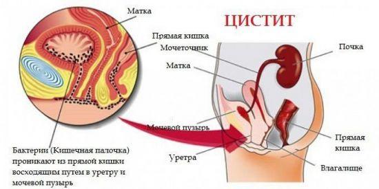 Цистит от кишечной палочки