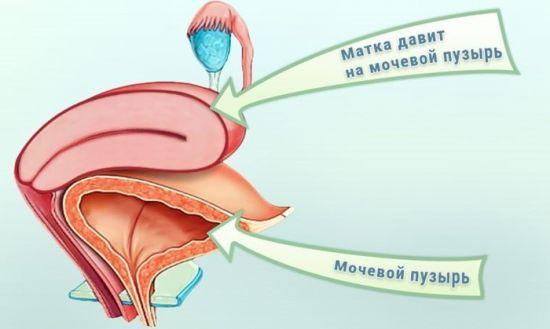 Давление матки на мочевой пузырь