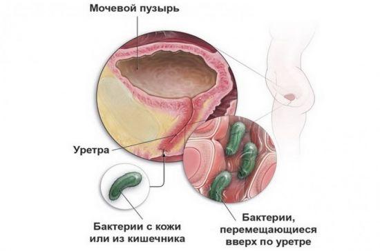 Попадание бактерий в уретру