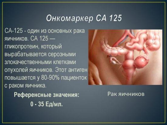 СА 125