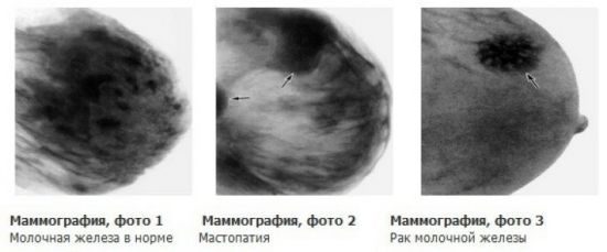 Результаты маммографии