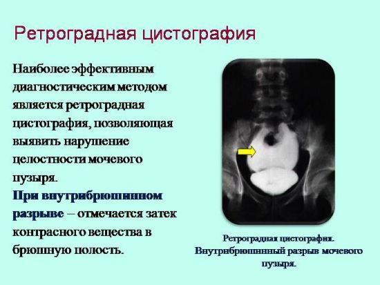 Ретроградная цистография