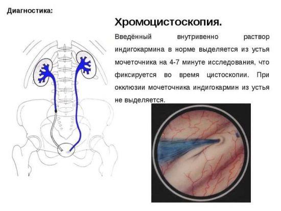 Хромоцистоскопия