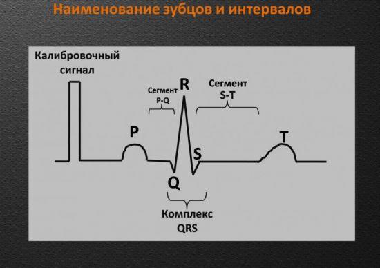Зубцы и интервалы на ЭКГ