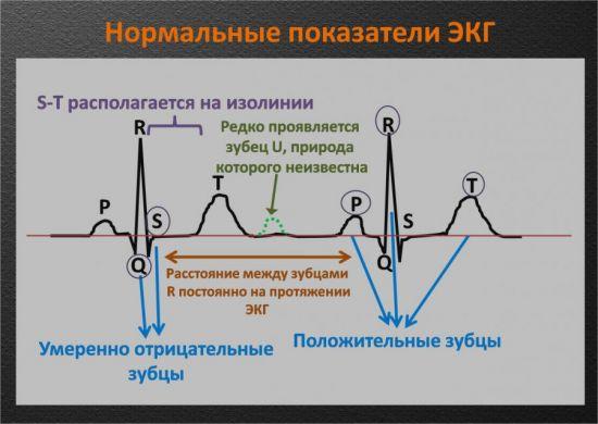 Нормальные показатели ЭКГ