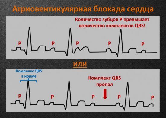 АВ-блокада сердца