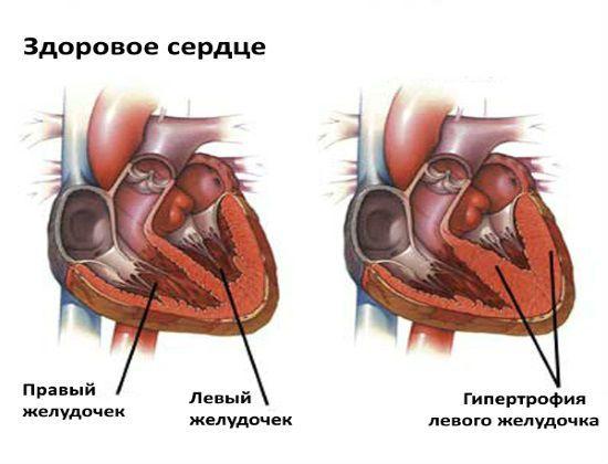 Гипертрофия ЛЖ