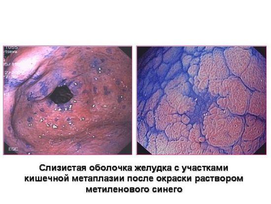 Диагностика желудка с метиленовым синим