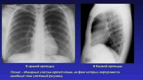 Рентген легких в 2 проекциях