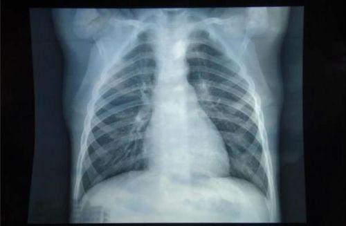 Бронхит на рентгене легких