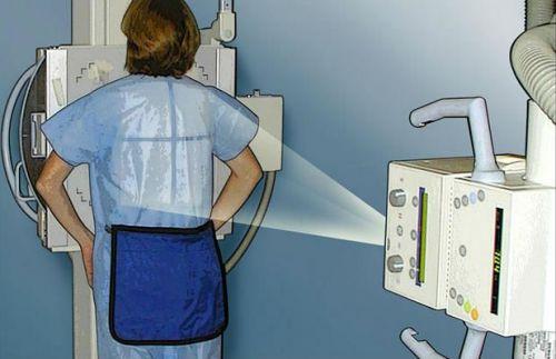 Рентген легких беременным