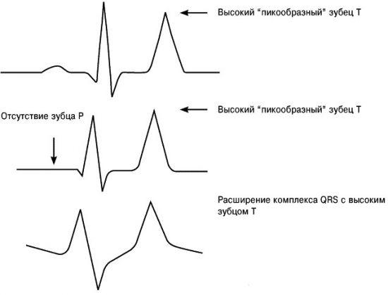 Признаки гиперкалиемии на ЭКГ