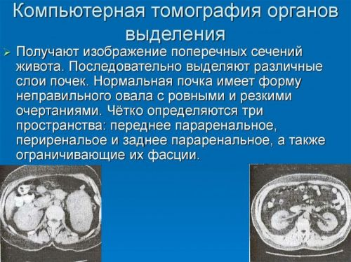 КТ мочевыделительной системы