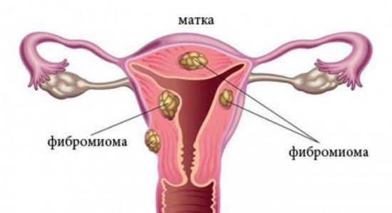 Фибромиома