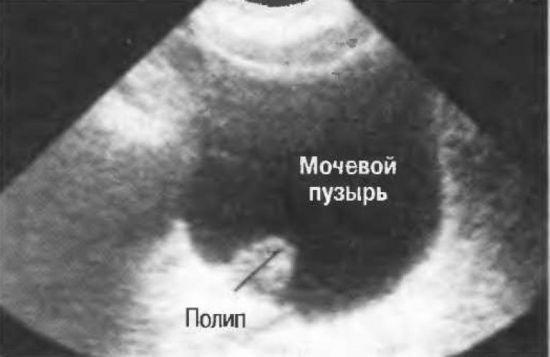 Полип в мочевом пузыре на УЗИ