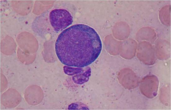 Бластные клетки