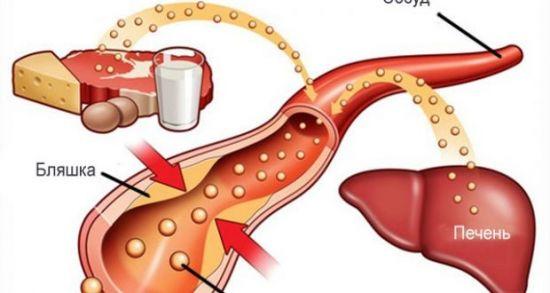Образование холестериновых бляшек