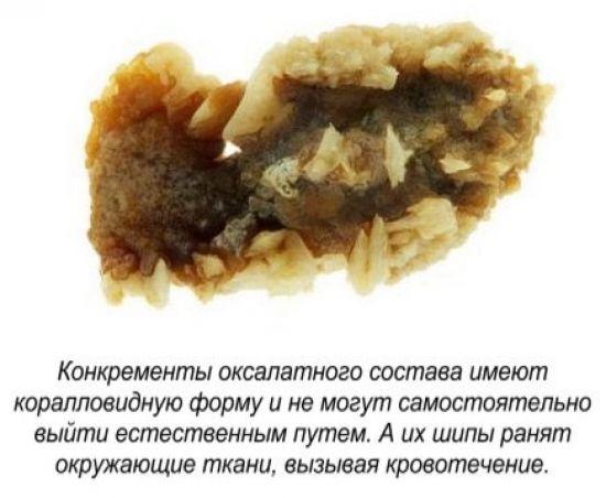 Оксалатовые камни