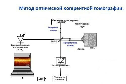 Метод ОКТ