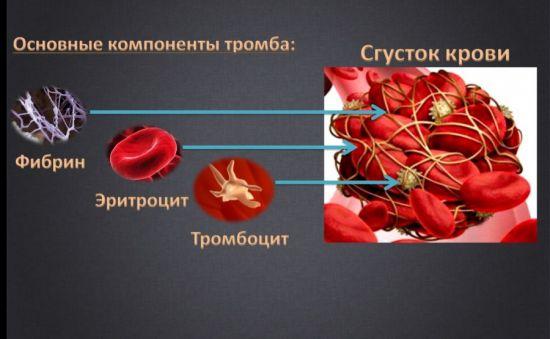 Компоненты тромба