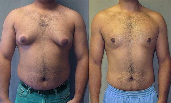 Увеличение грудных желез у мужчин