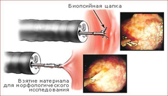 Биопсия при кольпоскопии