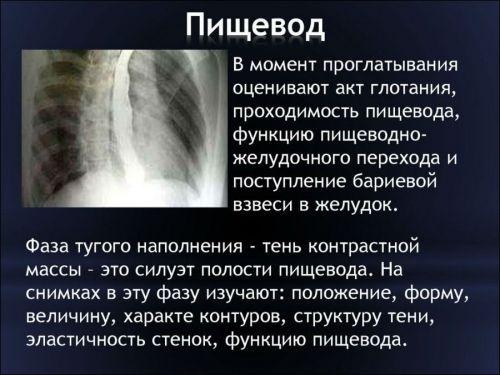 Рентген пищевода
