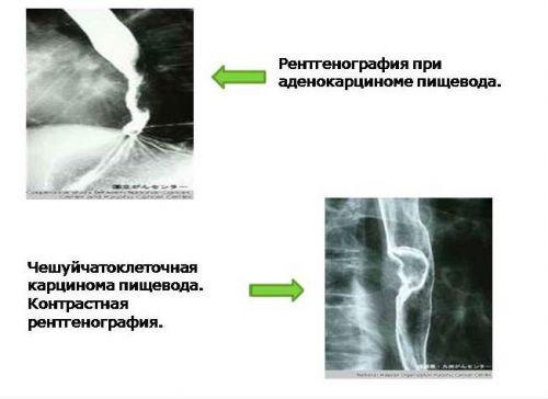 Рентген при раке пищевода