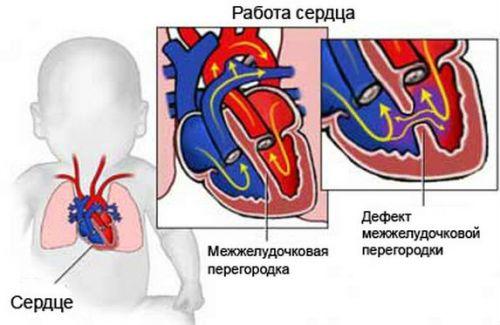 Дефект сердца плода