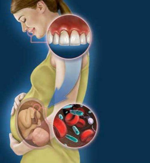 Состояние зубов при беременности