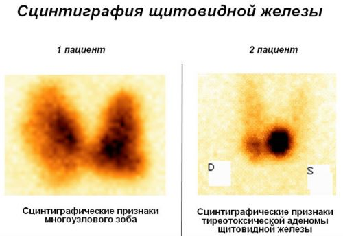 Сцинтиграфия щитовидной железы