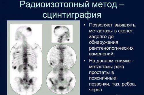 Сцинтиграфия костей скелета