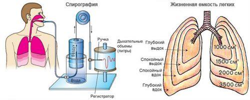 Спирография
