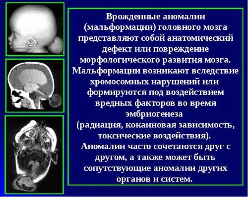 Аномалии головного мозга