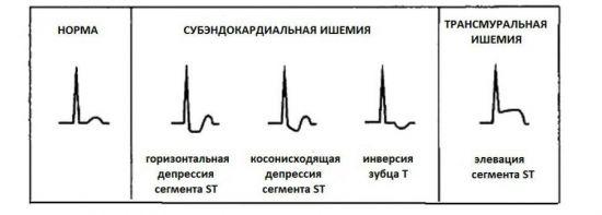 Изменения при ишемии сердца