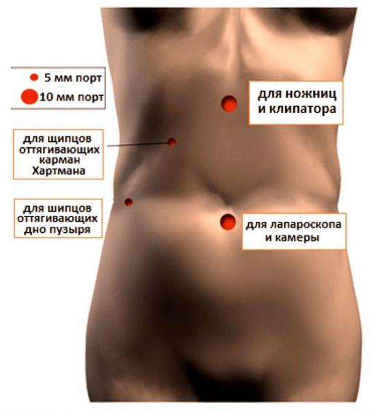 Доступы для лапароскопии