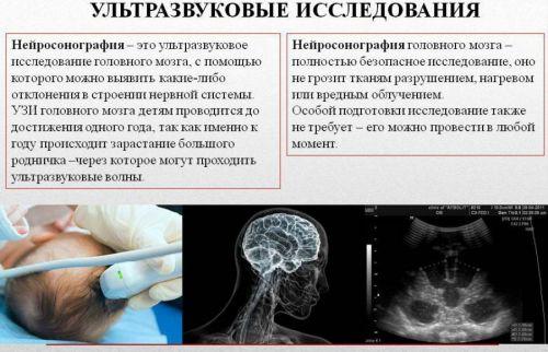 Нейросонография