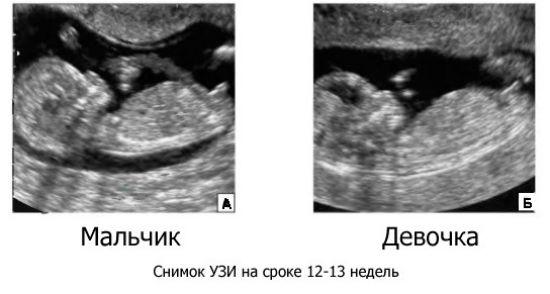 Что такое скрининг при беременности в 12 недель