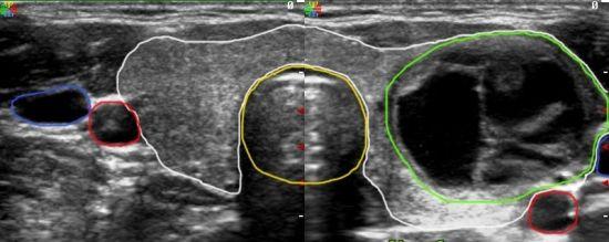 Узлы на щитовидной железе