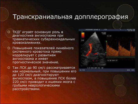 Транскраниальная допплерография