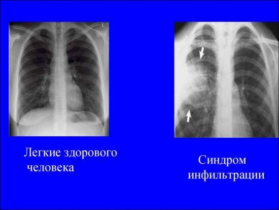 Синдром инфильтрации